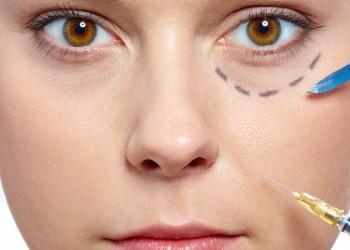 Göz Çevresi Tedavisi (Oküloplasti)