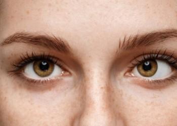 Göz Kayması (Şaşılık)